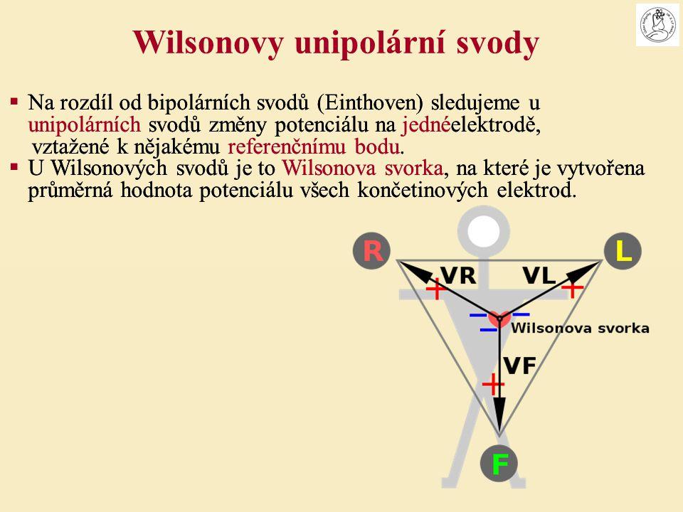Wilsonovy unipolární svody