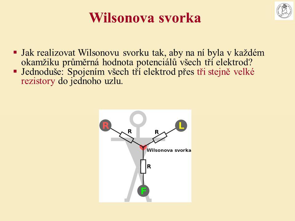 Wilsonova svorka Jak realizovat Wilsonovu svorku tak, aby na ní byla v každém okamžiku průměrná hodnota potenciálů všech tří elektrod