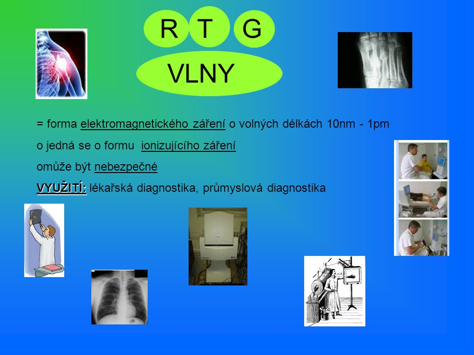 R T. G. VLNY. = forma elektromagnetického záření o volných délkách 10nm - 1pm. jedná se o formu ionizujícího záření.