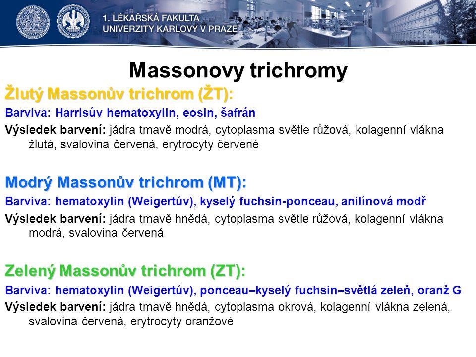 Massonovy trichromy Žlutý Massonův trichrom (ŽT):