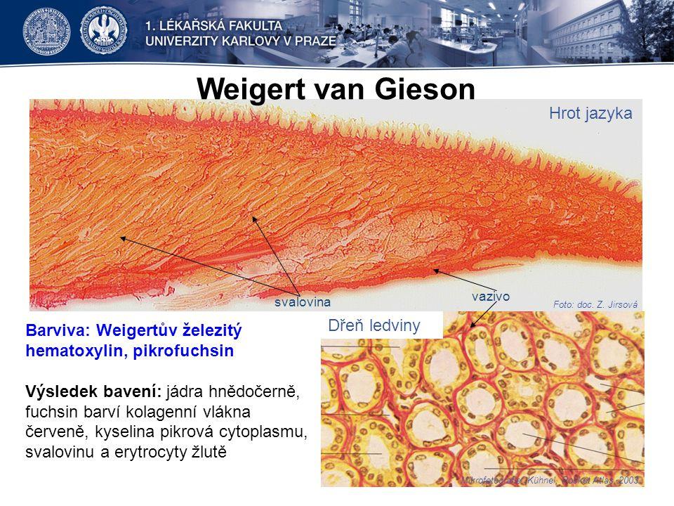 Weigert van Gieson Hrot jazyka Dřeň ledviny