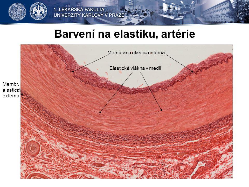Barvení na elastiku, artérie