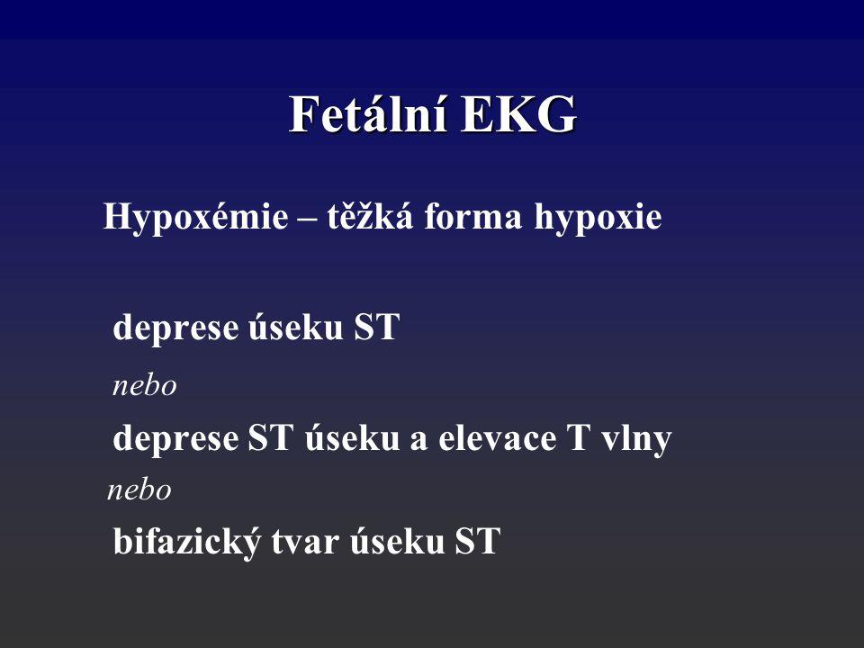 Fetální EKG Hypoxémie – těžká forma hypoxie deprese úseku ST nebo