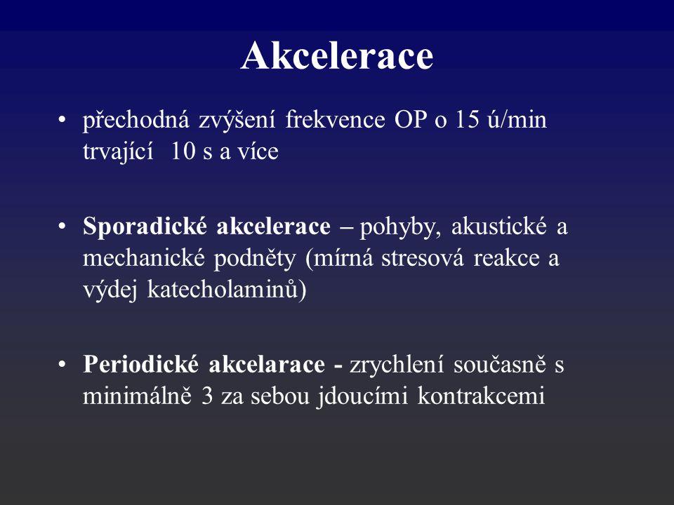 Akcelerace přechodná zvýšení frekvence OP o 15 ú/min trvající 10 s a více.