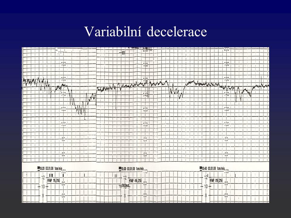 Variabilní decelerace