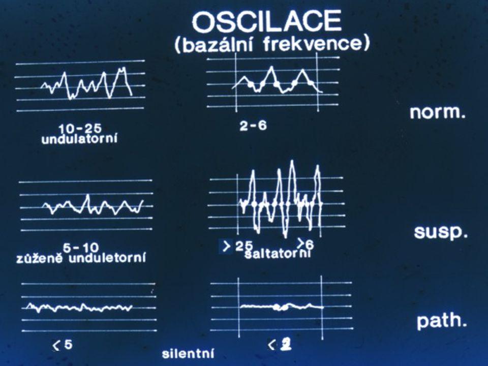 Zde vidíte několik krátkých kardiotokogramů s normálním , suspektním a patologickým obrazem