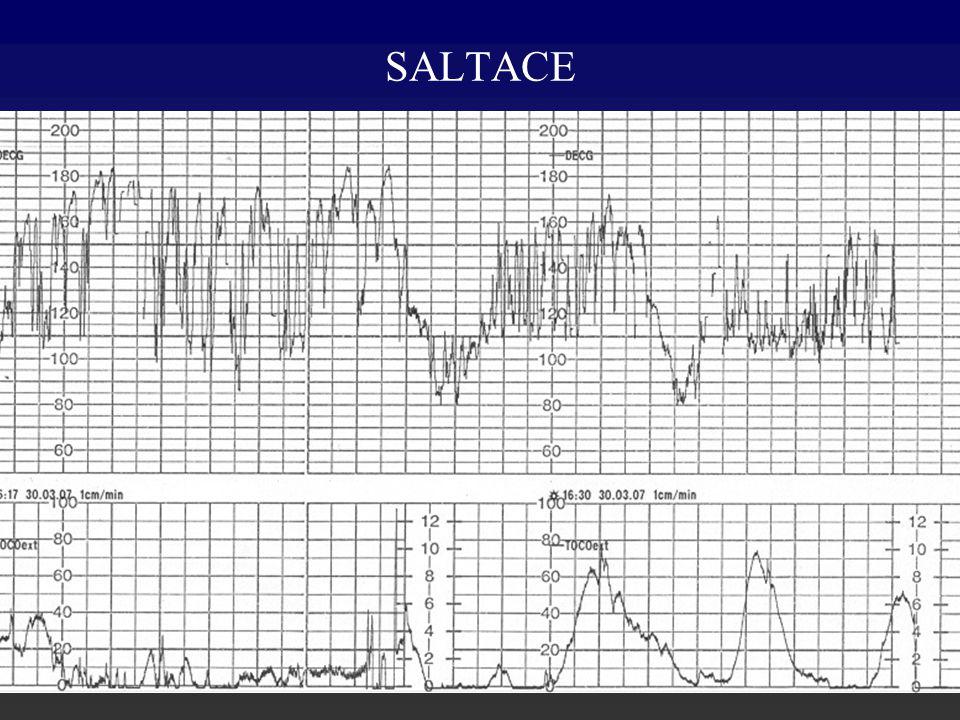 SALTACE