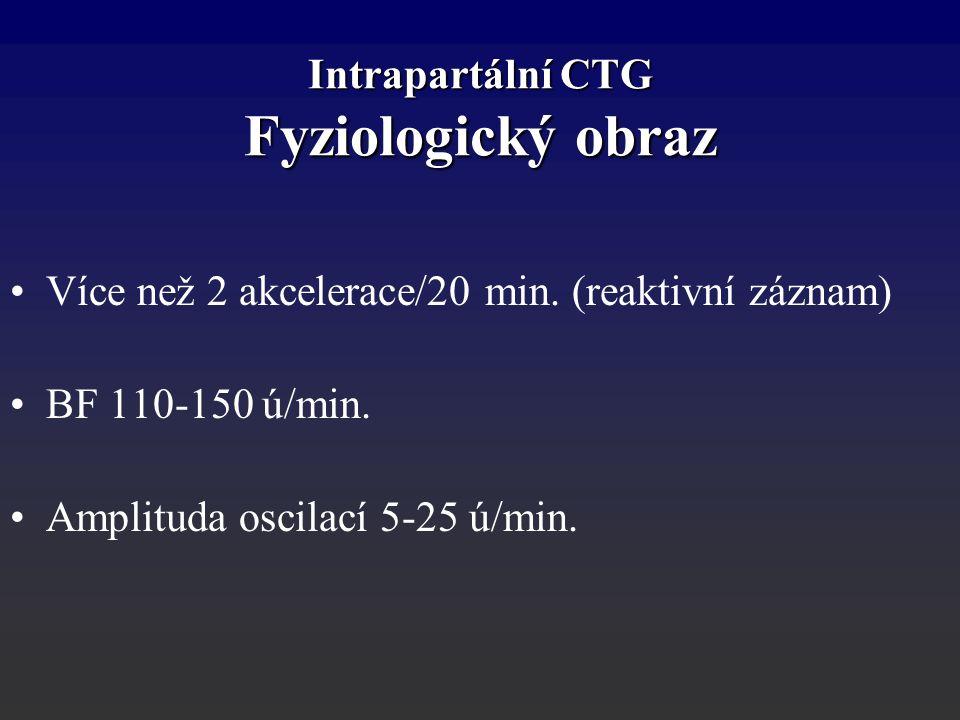 Intrapartální CTG Fyziologický obraz