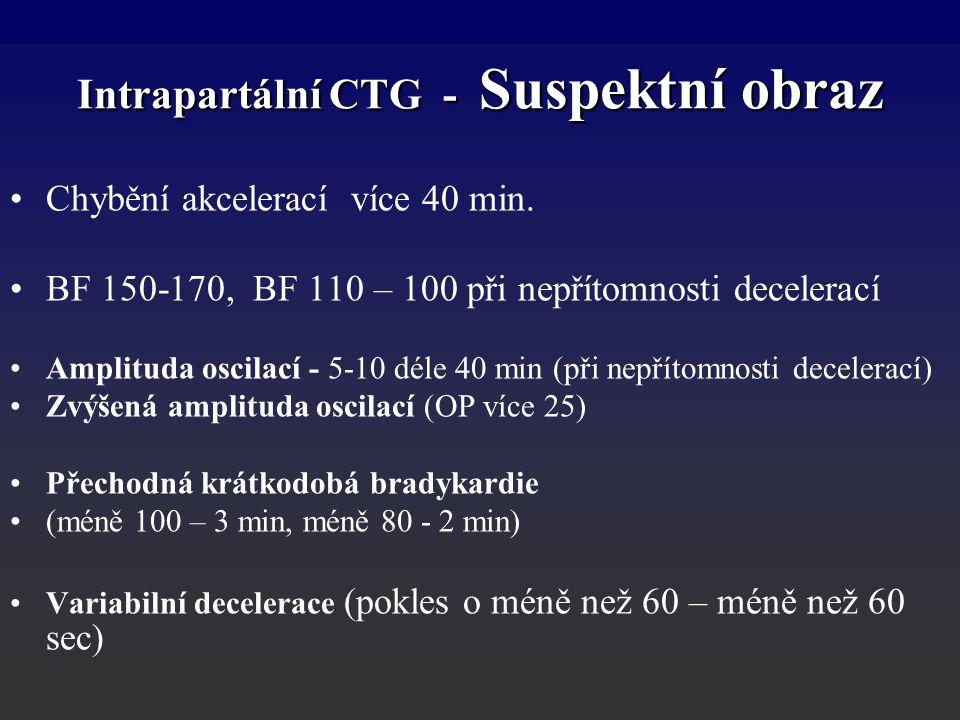 Intrapartální CTG - Suspektní obraz