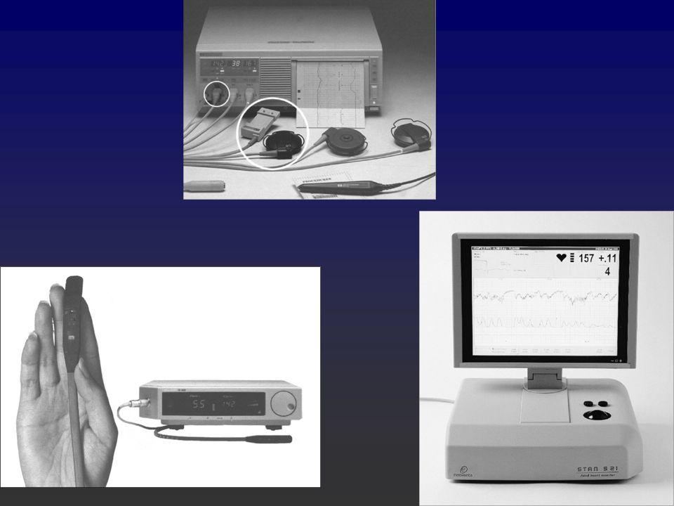Zde vidíte přístroje, kterými lze monitorovat plod v průběhu porodu, na horním obrázku vidíte fetální kradiotokograf, na dolním vlevo fetální oxymetr a vpravo STAN´=ST-analyzátor