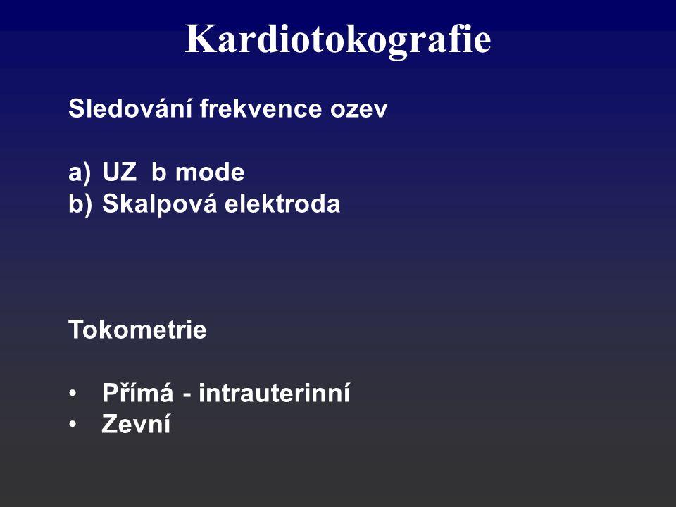 Kardiotokografie Sledování frekvence ozev UZ b mode Skalpová elektroda