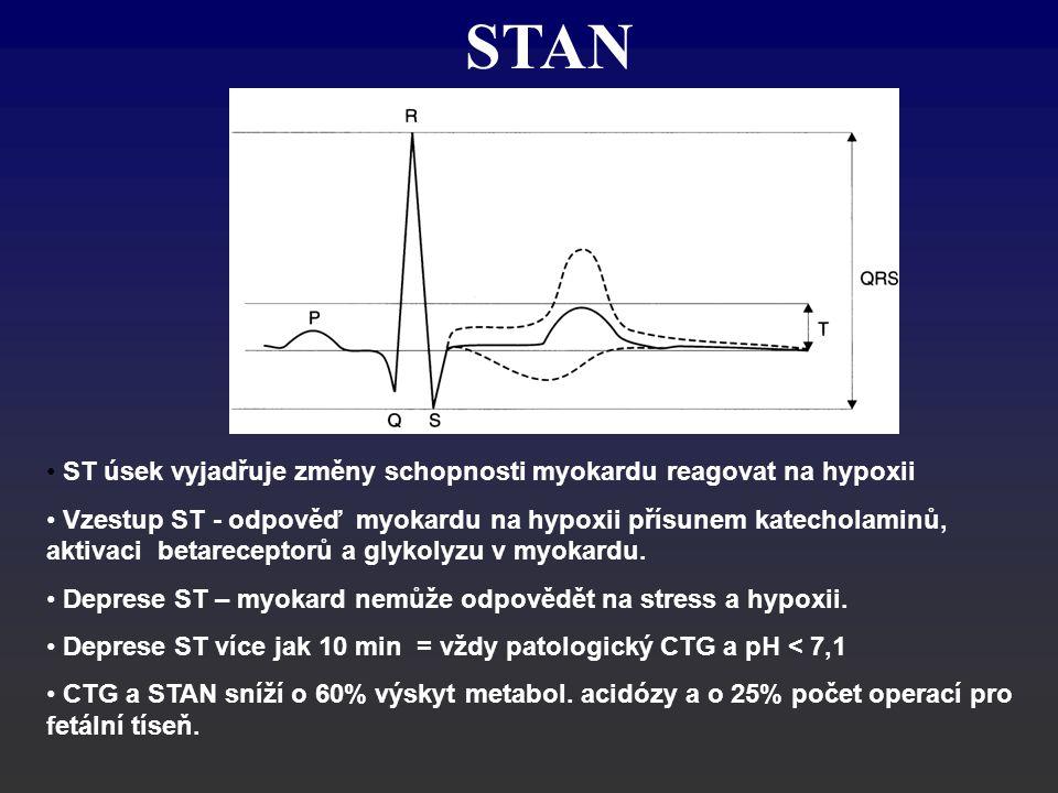 STAN ST úsek vyjadřuje změny schopnosti myokardu reagovat na hypoxii
