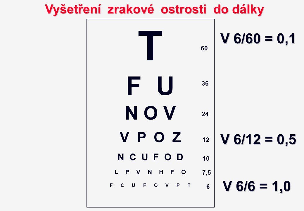 Vyšetření zrakové ostrosti do dálky