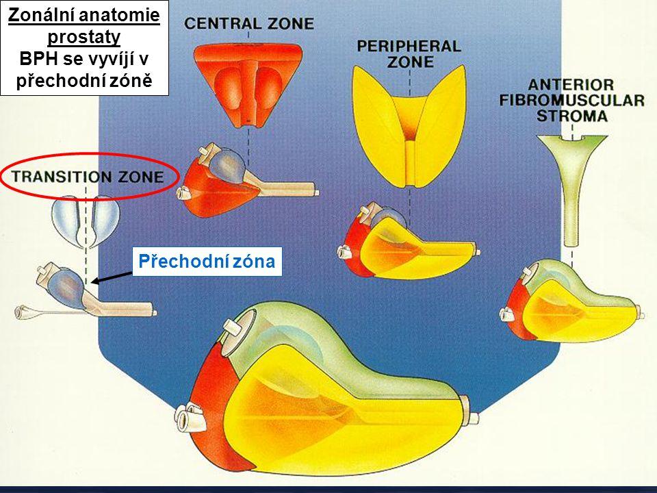 Zonální anatomie prostaty BPH se vyvíjí v přechodní zóně
