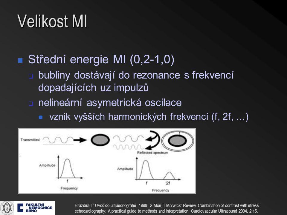 Velikost MI Střední energie MI (0,2-1,0)