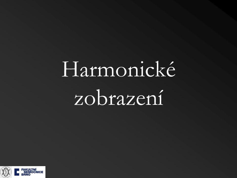 Harmonické zobrazení
