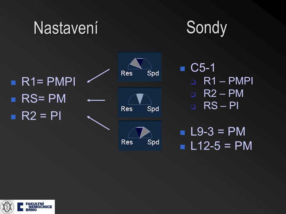 Nastavení Sondy C5-1 R1= PMPI RS= PM R2 = PI L9-3 = PM L12-5 = PM