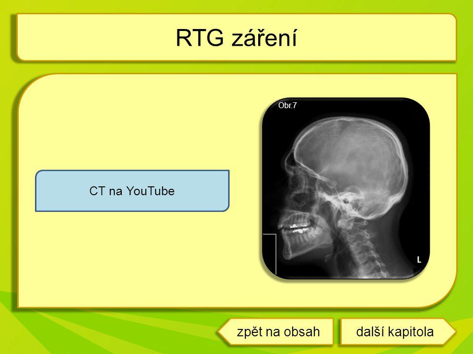 RTG záření Obr.7 CT na YouTube zpět na obsah další kapitola