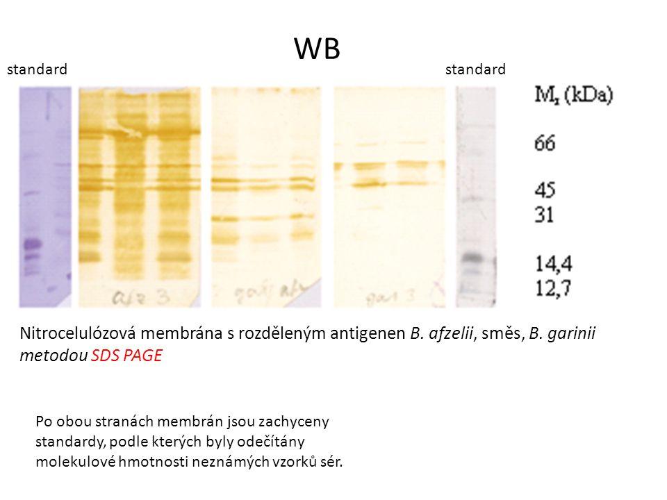 WB standard. standard. Nitrocelulózová membrána s rozděleným antigenen B. afzelii, směs, B. garinii.