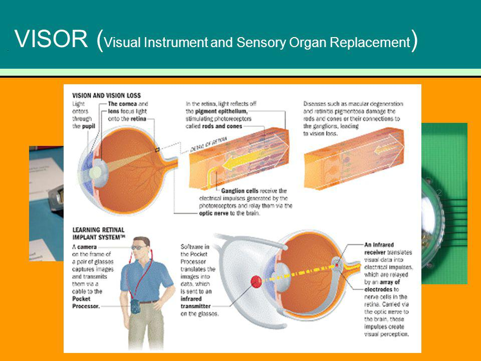 VISOR (Visual Instrument and Sensory Organ Replacement)