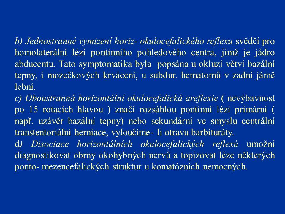 b) Jednostranné vymizení horiz- okulocefalického reflexu svědčí pro homolaterální lézi pontinního pohledového centra, jimž je jádro abducentu. Tato symptomatika byla popsána u okluzí větví bazální tepny, i mozečkových krvácení, u subdur. hematomů v zadní jámě lební.