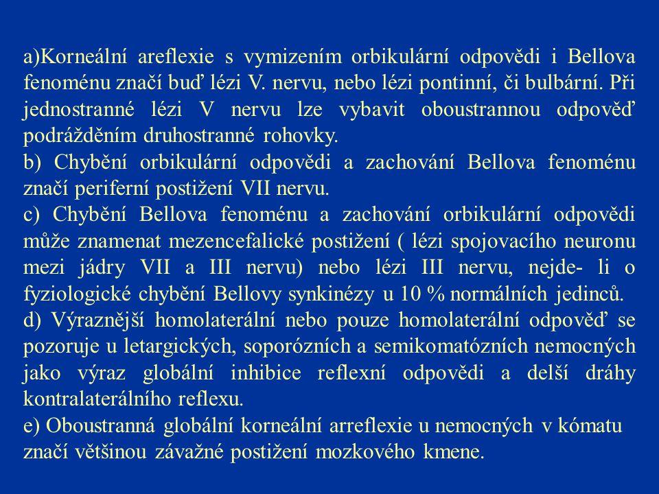 a)Korneální areflexie s vymizením orbikulární odpovědi i Bellova fenoménu značí buď lézi V. nervu, nebo lézi pontinní, či bulbární. Při jednostranné lézi V nervu lze vybavit oboustrannou odpověď podrážděním druhostranné rohovky.