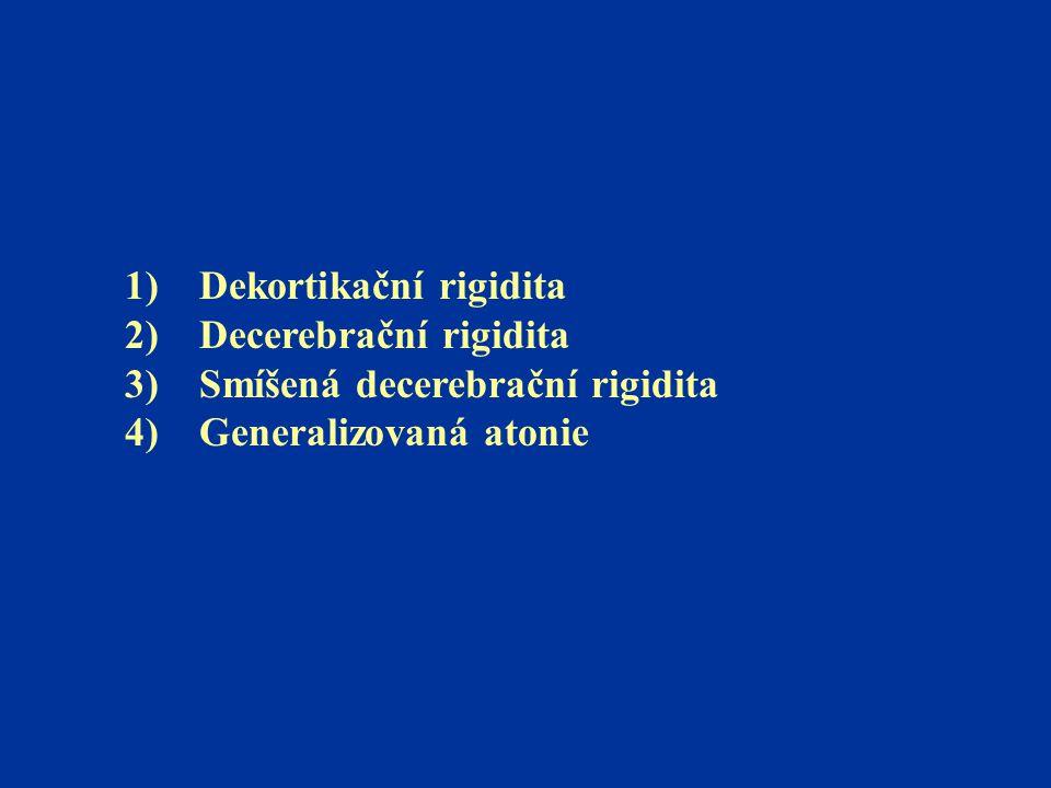 1) Dekortikační rigidita