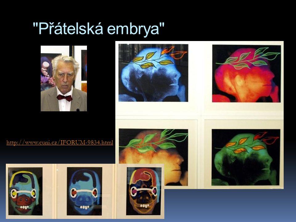 Přátelská embrya http://www.cuni.cz/IFORUM-9834.html