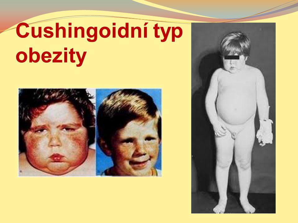 Cushingoidní typ obezity