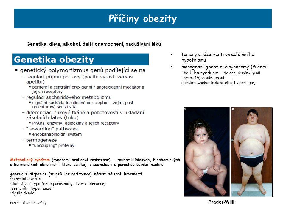 Příčiny obezity Genetika, dieta, alkohol, další onemocnění, nadužívání léků. tumory a léze ventromediálnmího hypotalamu.