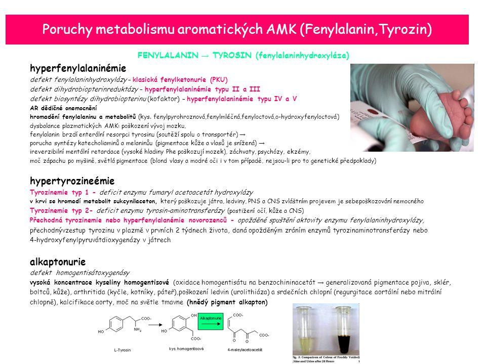 Poruchy metabolismu aromatických AMK (Fenylalanin,Tyrozin)