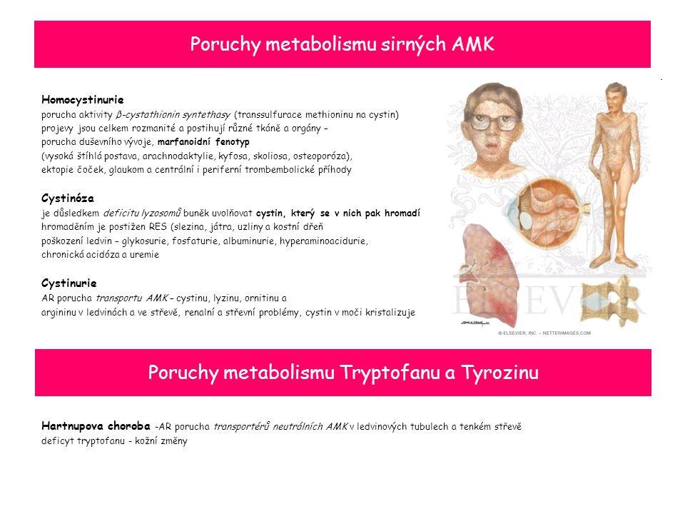 Poruchy metabolismu sirných AMK