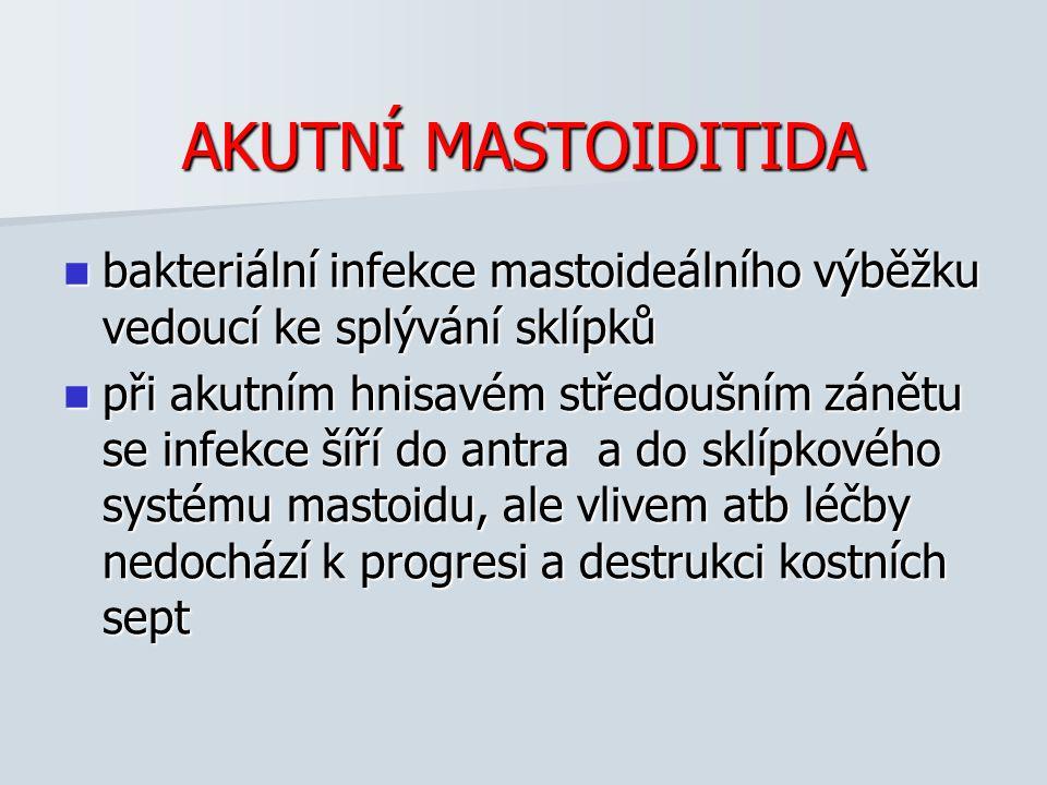 AKUTNÍ MASTOIDITIDA bakteriální infekce mastoideálního výběžku vedoucí ke splývání sklípků.