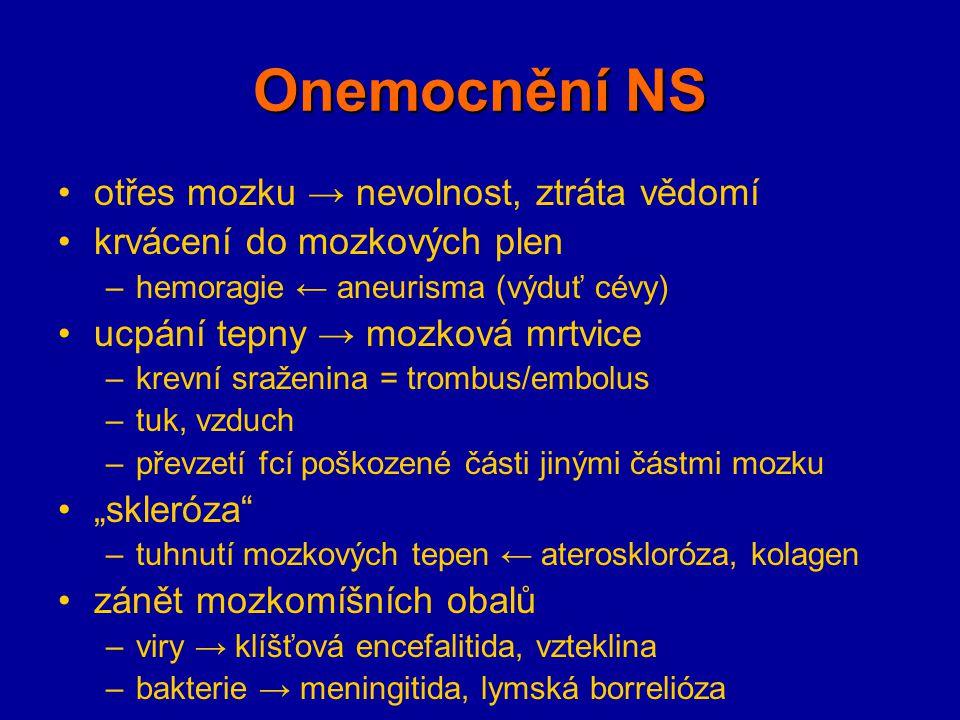 Onemocnění NS otřes mozku → nevolnost, ztráta vědomí