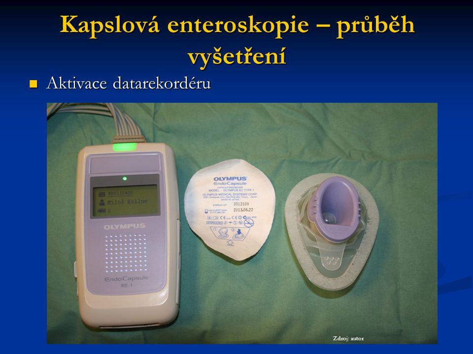 Kapslová enteroskopie – průběh vyšetření