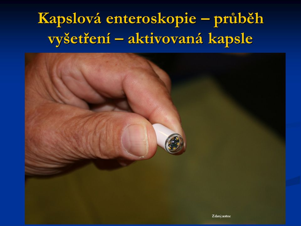 Kapslová enteroskopie – průběh vyšetření – aktivovaná kapsle