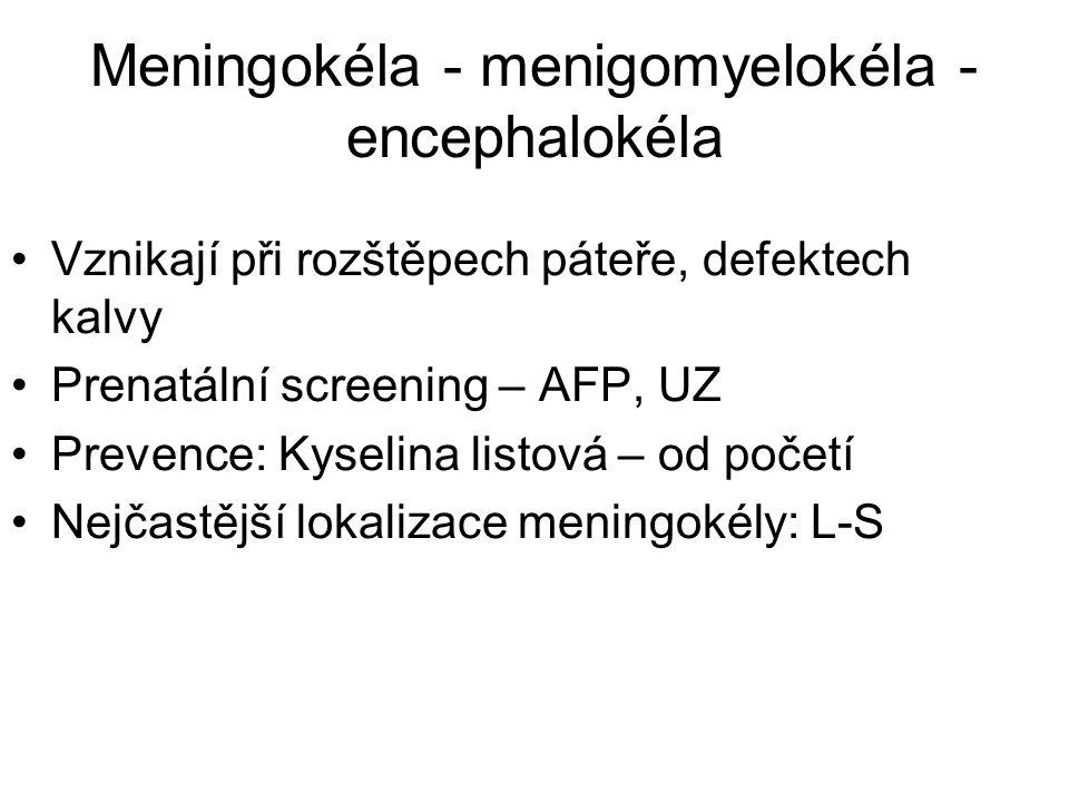 Meningokéla - menigomyelokéla -encephalokéla