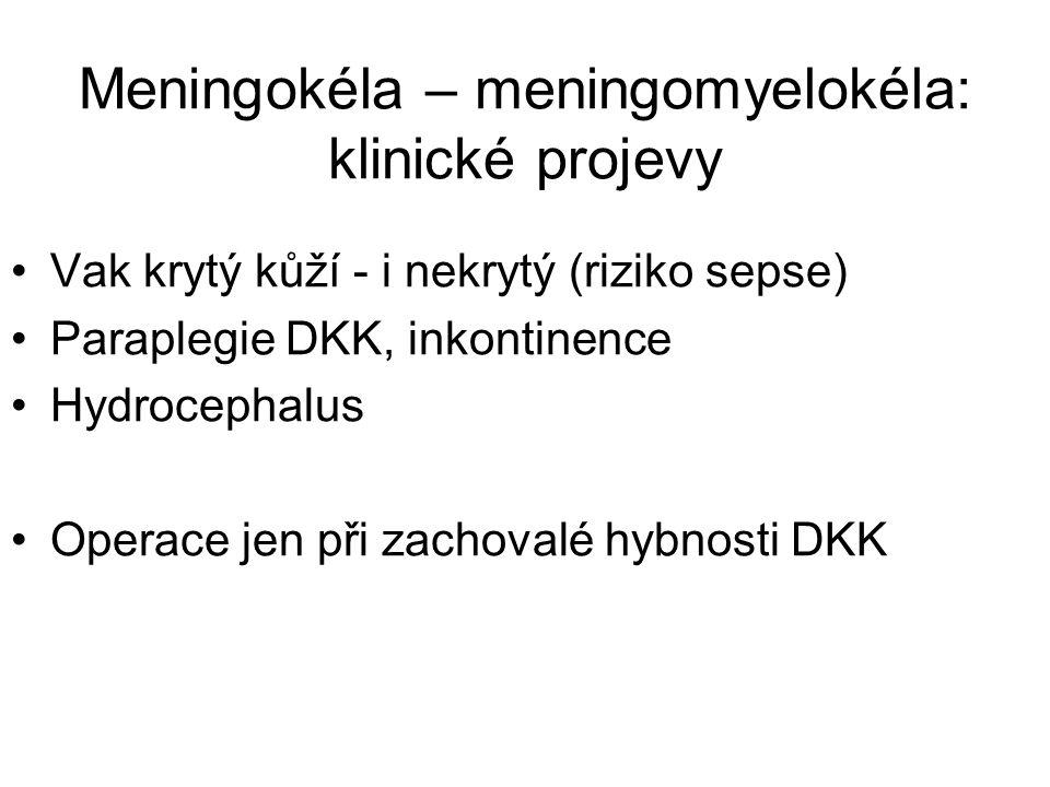 Meningokéla – meningomyelokéla: klinické projevy