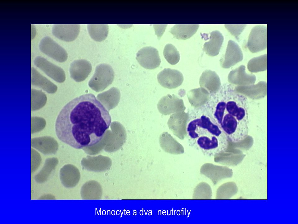 Monocyte a dva neutrofily