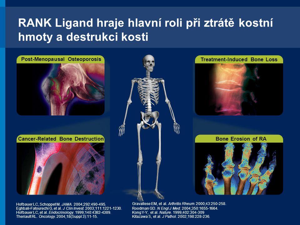 RANK Ligand hraje hlavní roli při ztrátě kostní hmoty a destrukci kosti