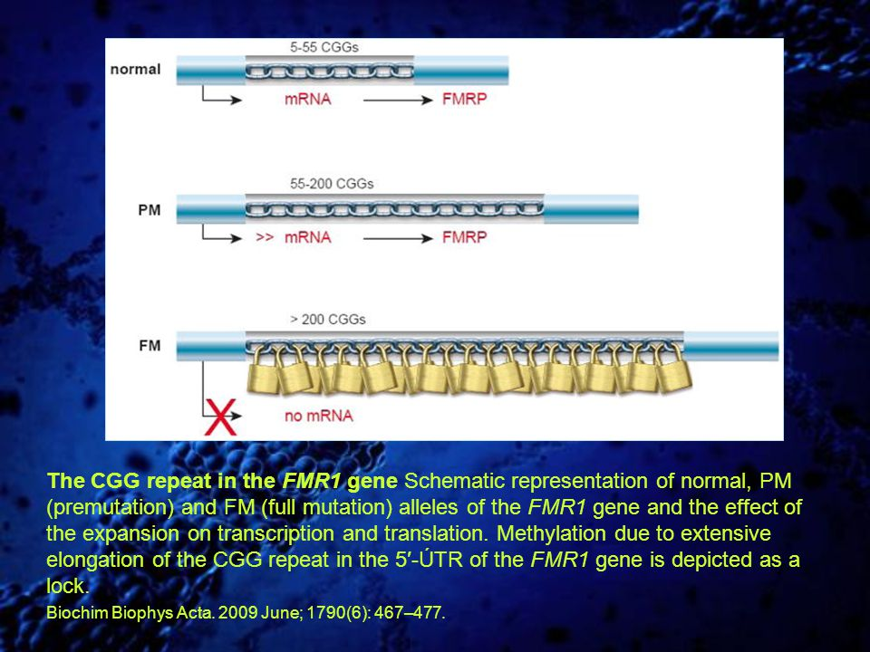 The CGG repeat in the FMR1 gene Schematic representation of normal, PM (premutation) and FM (full mutation) alleles of the FMR1 gene and the effect of the expansion on transcription and translation. Methylation due to extensive elongation of the CGG repeat in the 5′-ÚTR of the FMR1 gene is depicted as a lock.