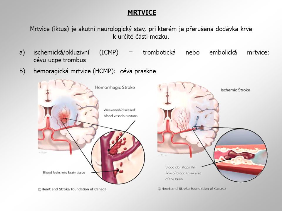 MRTVICE Mrtvice (iktus) je akutní neurologický stav, při kterém je přerušena dodávka krve k určité části mozku.