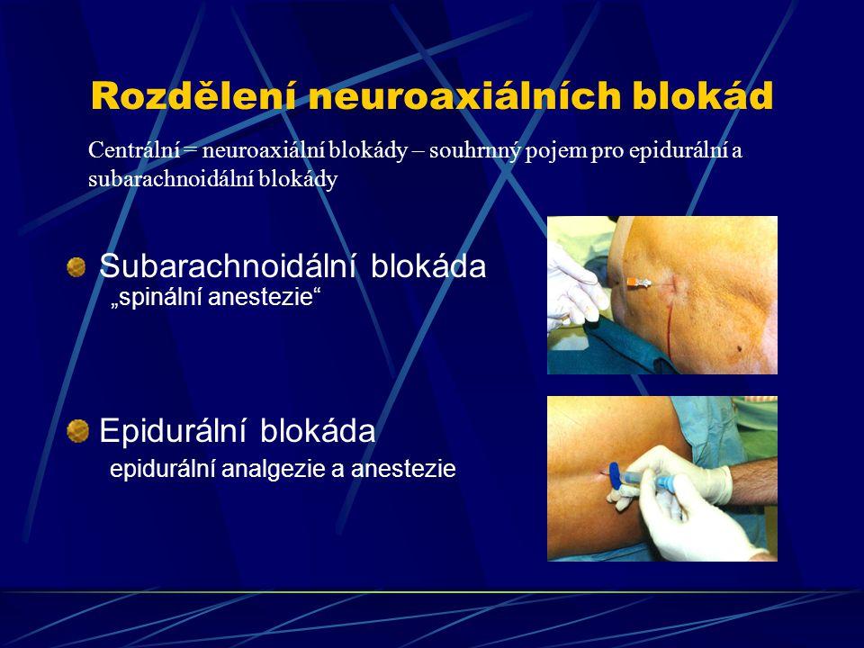 Rozdělení neuroaxiálních blokád