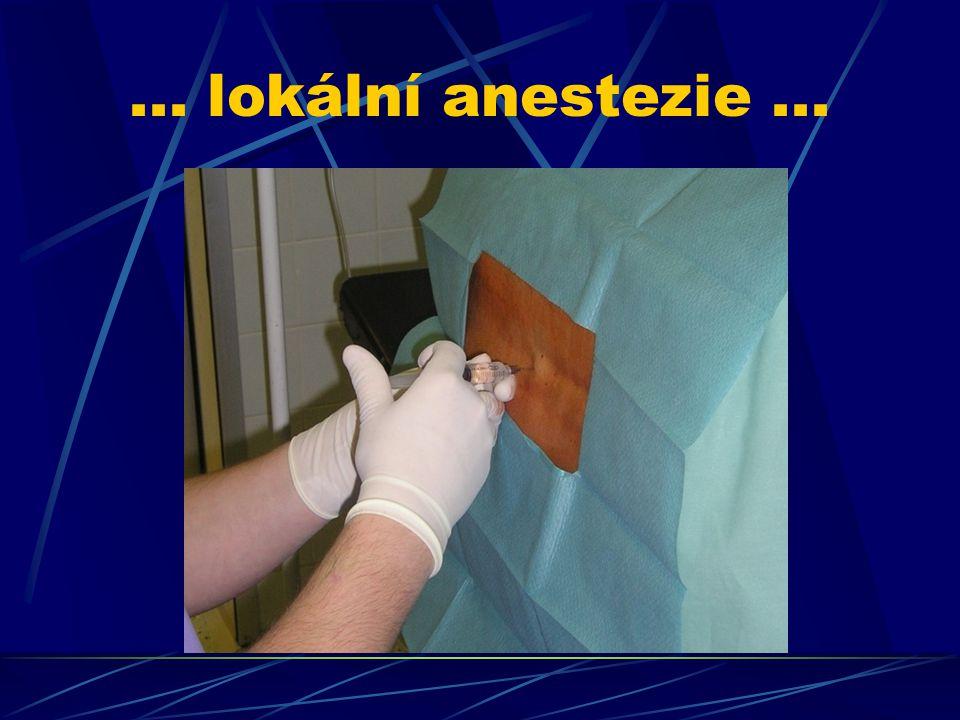 ... lokální anestezie ...