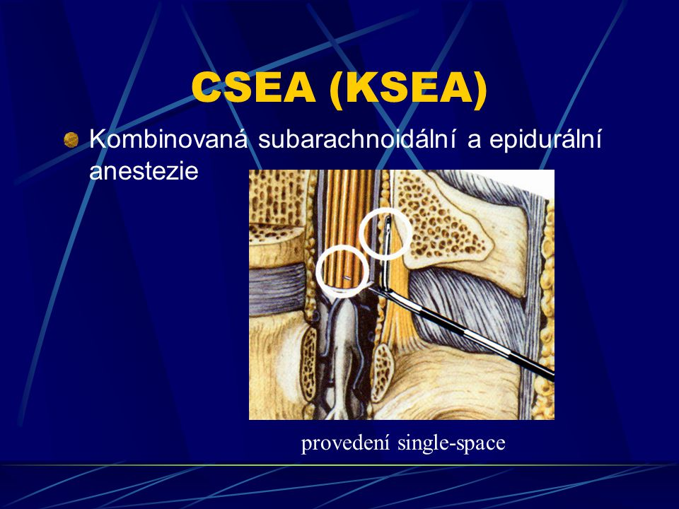 CSEA (KSEA) Kombinovaná subarachnoidální a epidurální anestezie
