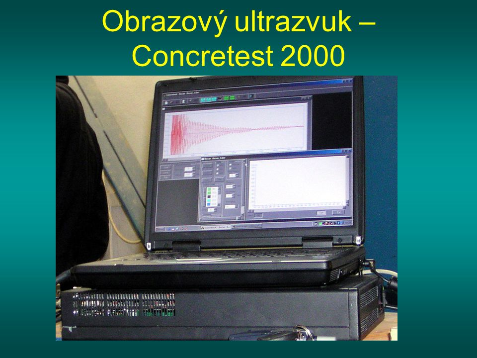 Obrazový ultrazvuk – Concretest 2000