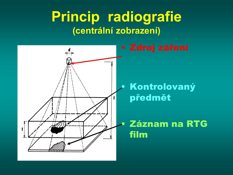 Princip radiografie (centrální zobrazení)