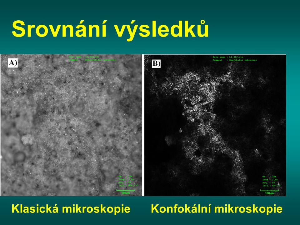 Srovnání výsledků Klasická mikroskopie Konfokální mikroskopie