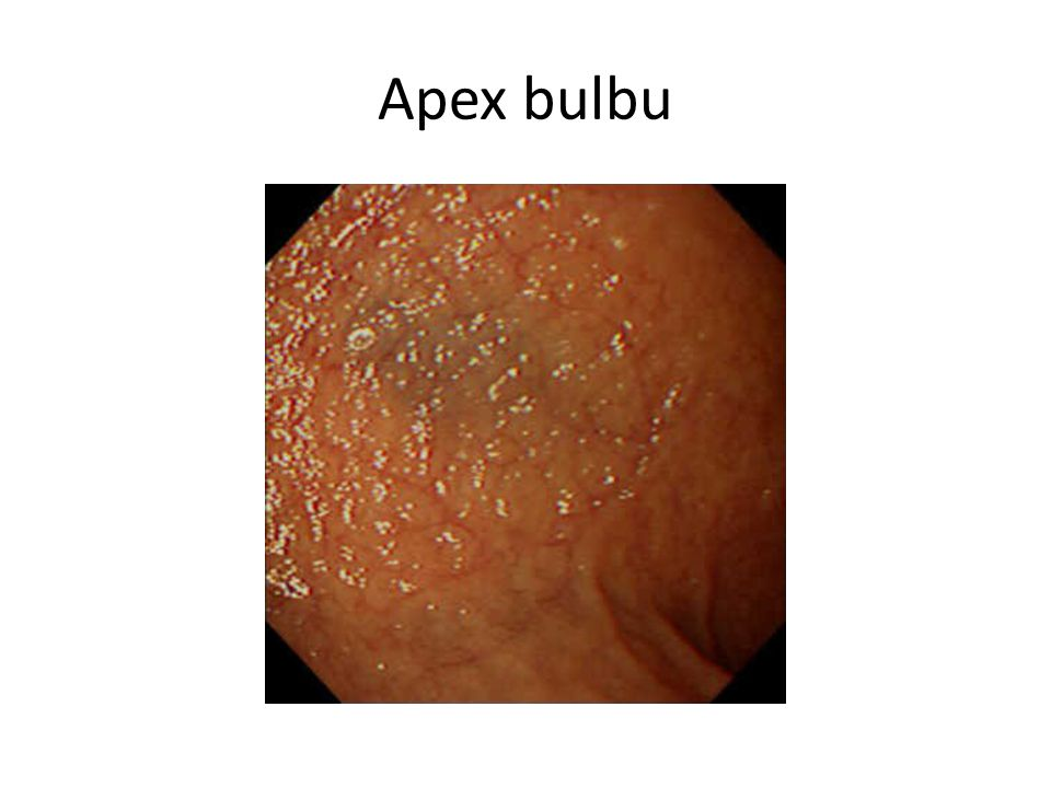 Apex bulbu