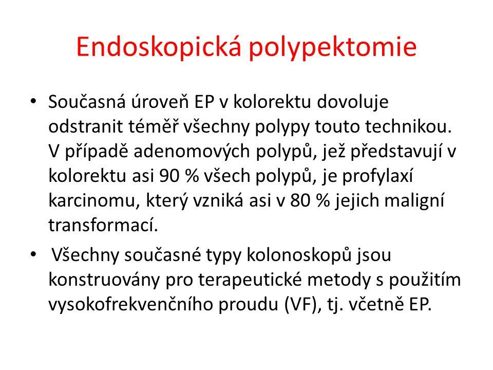 Endoskopická polypektomie